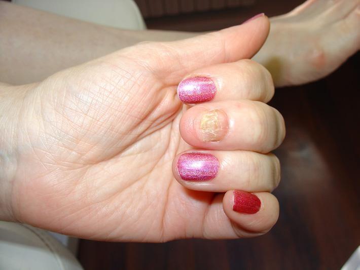 Отслоение ногтя от кожи на руках лечение